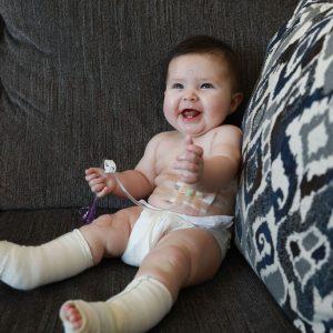 Read Article The Beauty of Melia's Feeding Tube